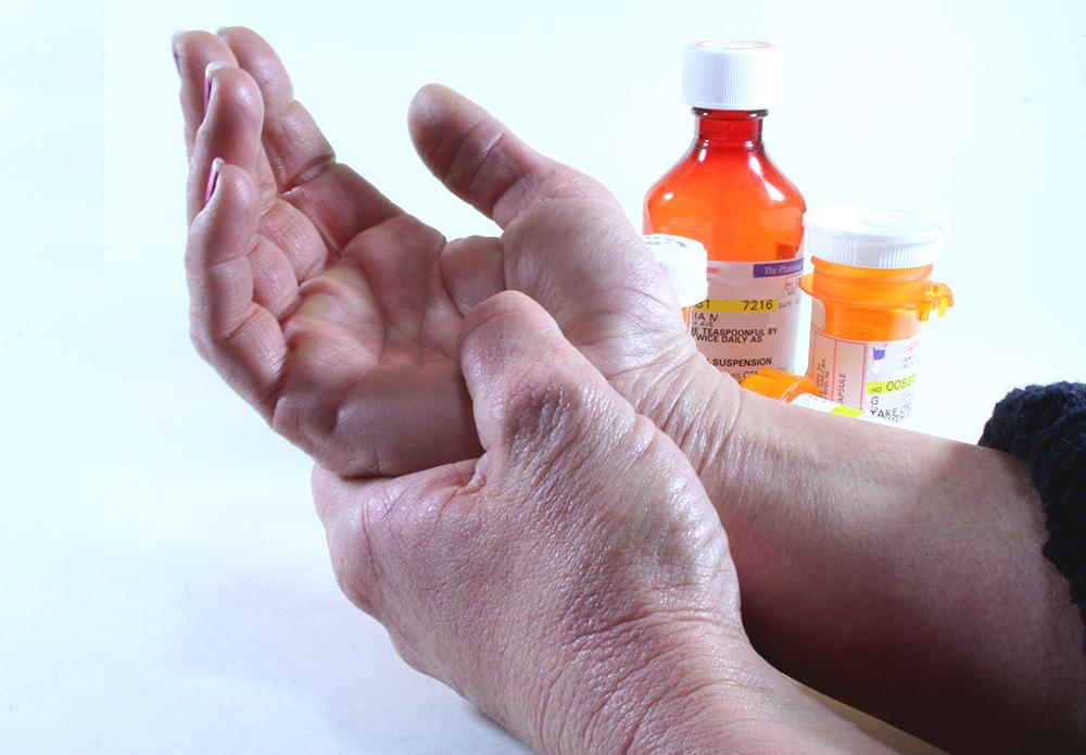 Как лечить ревматизм рук народными средствами 103